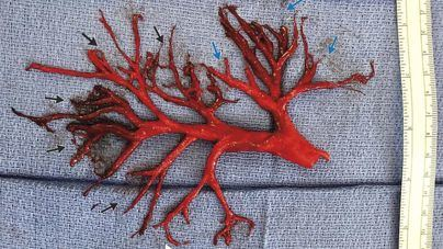 El increíble coágulo de sangre que tosió un paciente en Estados Unidos