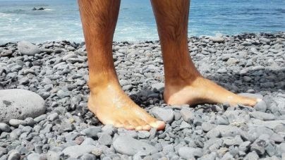 La Candelaria advierte de posibles lesiones en los pies si no se utiliza calzado adecuado en verano