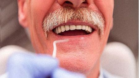 Mantener una buena salud oral podría retrasar la progresión de la enfermedad de Alzheimer